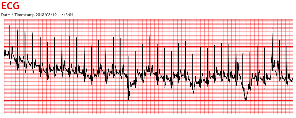 ECG Graph using CanvasJS Chart