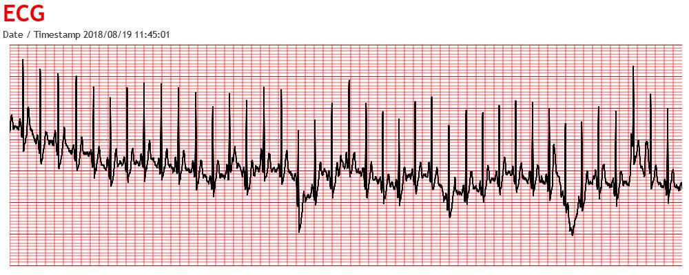 ECG Graph using CanvasJS